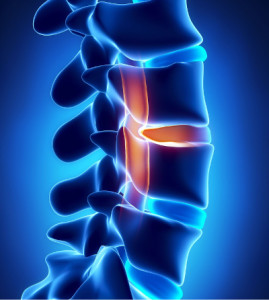 painful lumbar disc herniation